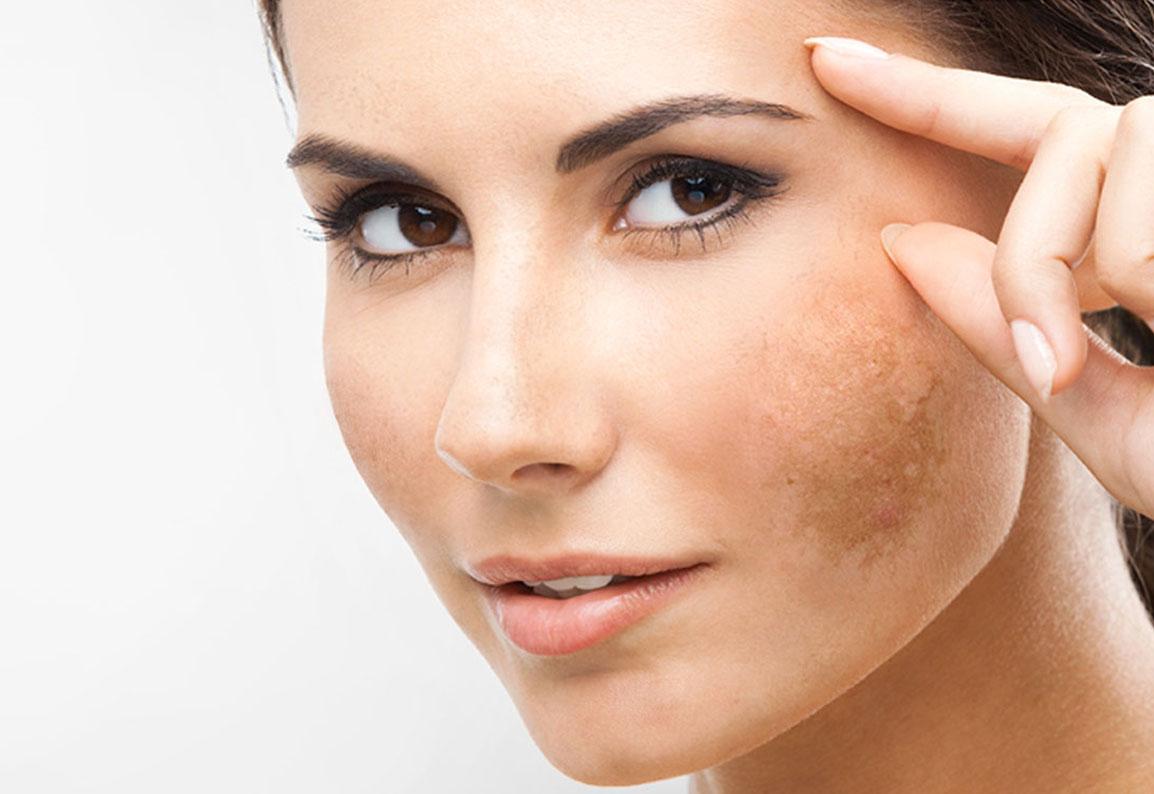 macchie sulla pelle laser